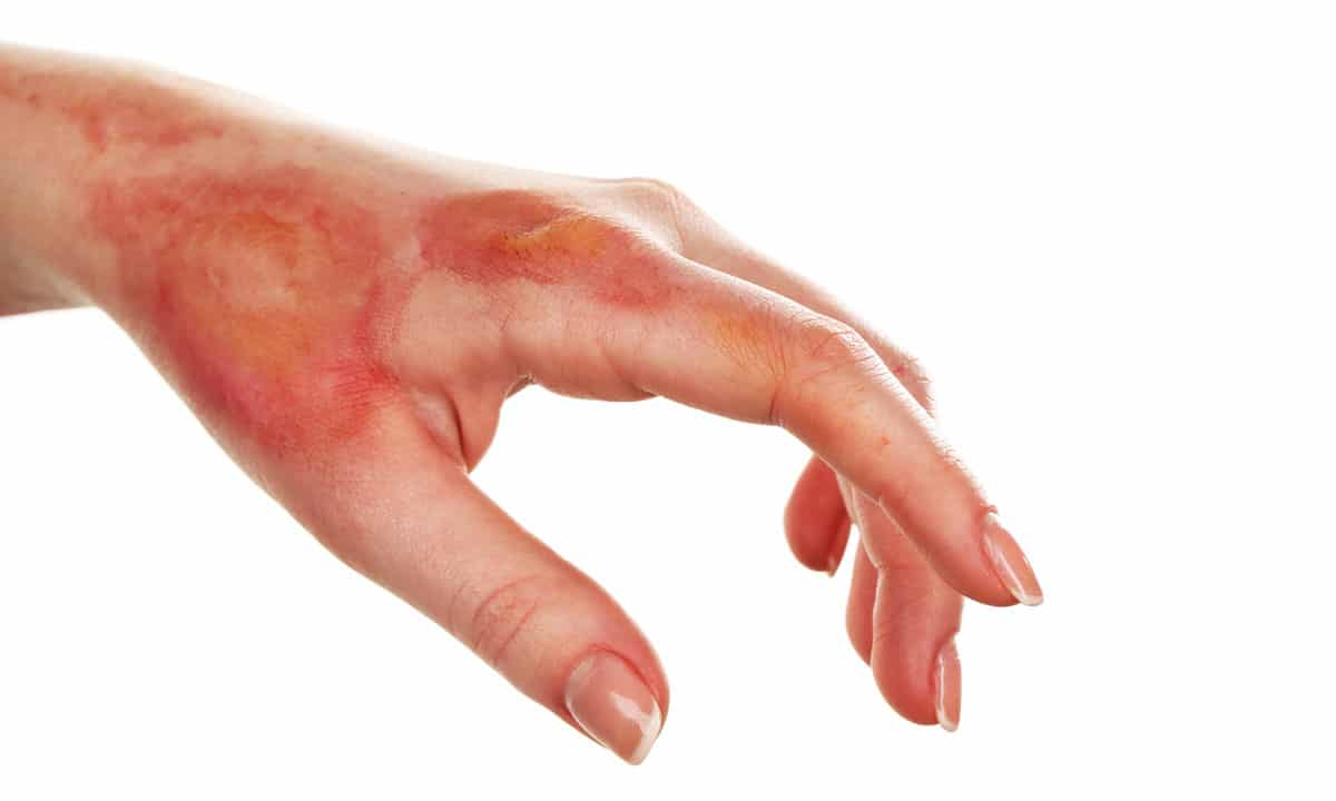 A hand with moderate burn injuries over a white background.
