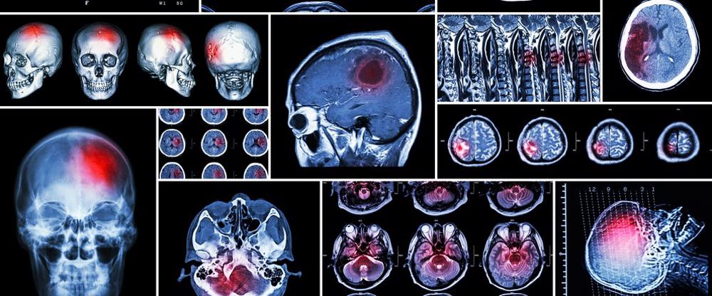 A detailed diagram of a brain scan highlighting an area where the head was injured..