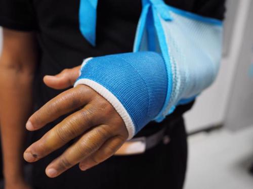 A person with a broken arm in a cast, a result of a bicycle accident.