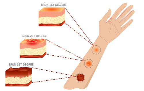 Illustration showing damage to skin in 1st, 2nd, and 3rd degree burns.