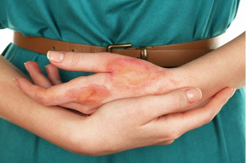 Close up image of burns on woman's hands. Contact a Brooksville burn injury lawyer.