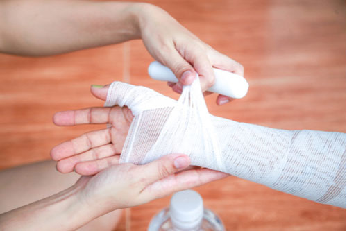 Image of bandaged hand. Contact an East Lake-Orient Park burn injury lawyer.