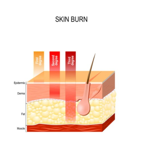 Image showing damage to layers of skin in degrees of burns. Contact a Pinellas Park burn injury lawyer.