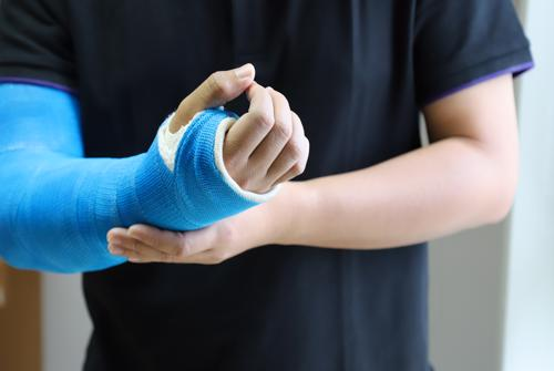 Schedule your free consultation with a Winter Garden personal injury lawyer.